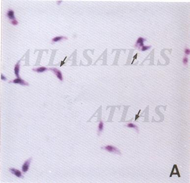 Toxoplasma Gondii Tachyzoites   www.pixshark.com - Images ...